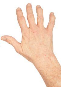 Łuszczycowe zapalenie stawów dłoni - zdjęcie