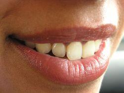 Wargi i zęby